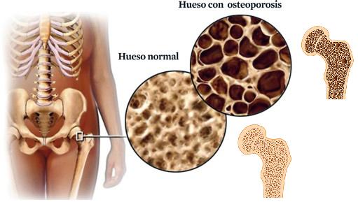 Colágenos contra osteoporosis